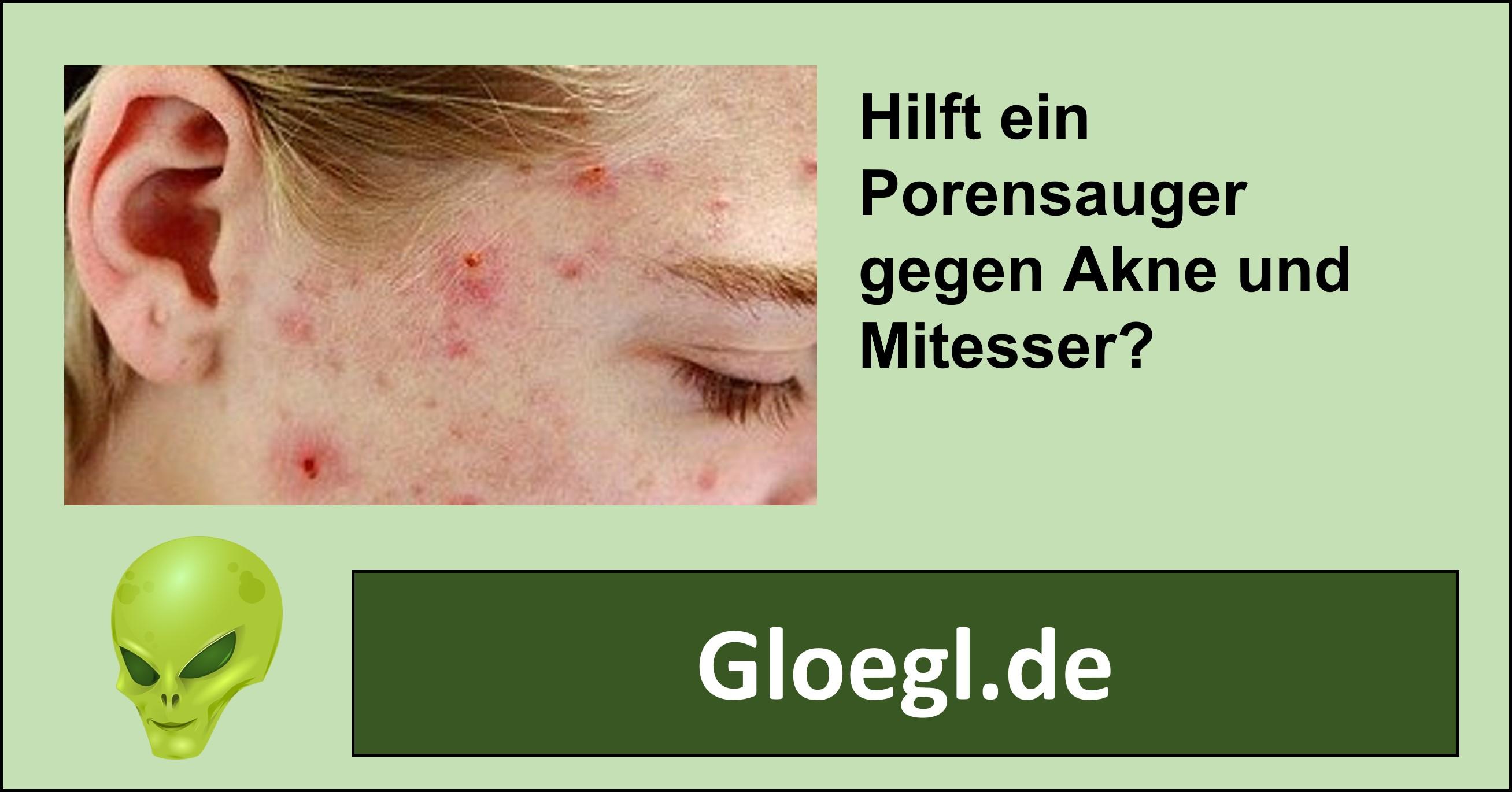 Der Porensauger - Wirksames Hilfsmittel gegen Pickel und Mitesser?